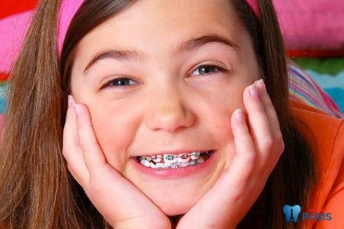 chỉnh răng mọc lẫy hàm dưới