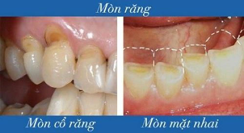 Chữa răng mòn mặt nhai