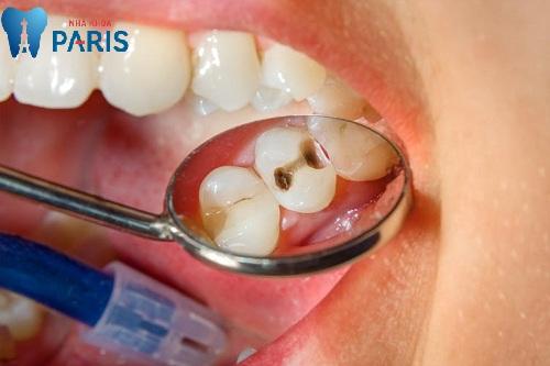 chữa sâu răng hàm giá bao nhiêu