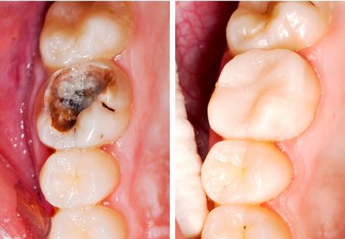 Chữa viêm tủy răng có đau không