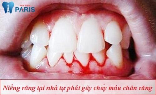 có nên dùng dụng cụ niềng răng tại nhà không