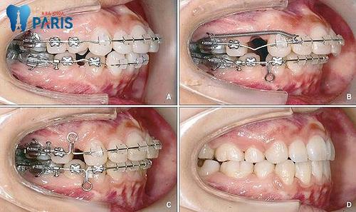 Có nên nhổ răng khi niềng không? Nhổ răng để niềng