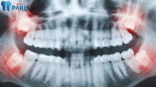 có nên nhổ răng khi niềng không
