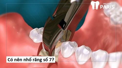 có nên nhổ răng số 7 không