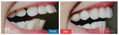 Bọc răng sứ là 1 trong những giải pháp chỉnh răng không cần niềng2