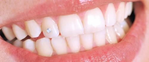 Răng đính đá sẽ đạt độ thẩm mỹ cao nhất khi được đính trên hàm răng trắng sáng, đều màu