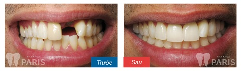 Khách hàng Nguyễn Văn Thành trước - sau phục hình răng bằng công nghệ Implant 4S
