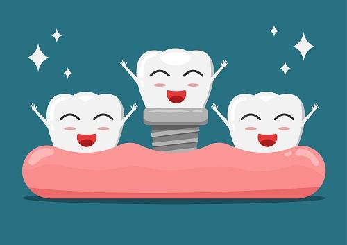 trồng răng hàm implant