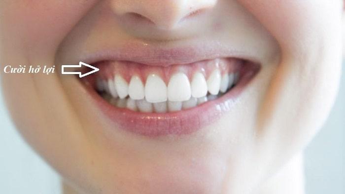Định nghĩa về cười hở lợi
