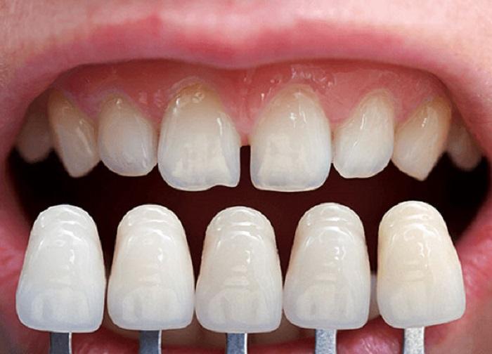 Bệnh viện răng hàm mặt TW