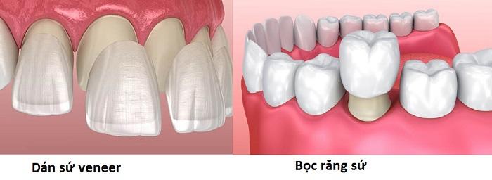 Hai phương pháp này đều cần mài răng nhưng mức độ và phạm vi mài cũng sẽ khác nhau.