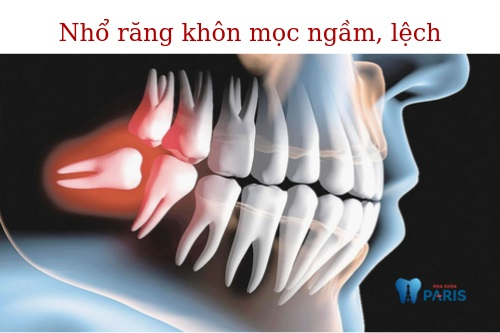 Đang nhức răng có nhổ được không 2