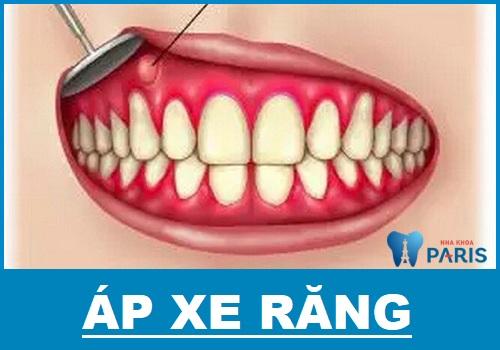 dấu hiệu áp xe răng là gì