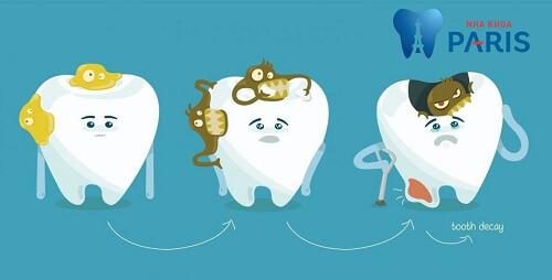 Sâu răng ở trẻ em: Nguyên nhân, dấu hiệu, tác hại và cách điều trị