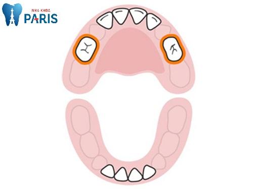 dấu hiệu trẻ mọc răng hàm sốt cao
