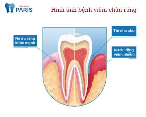 Dấu hiệu viêm chân răng hàm