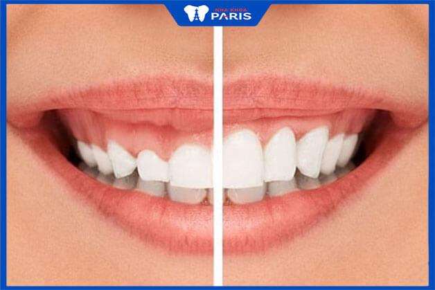 Yếu tố nào tác động tới mức chi phí phẫu thuật cười hở lợi