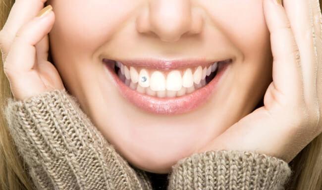 [Tư vấn] Răng bị mòn men có đính đá được không?