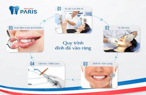 Quy trình đính đá vào răng nhanh chóng - an toàn với công nghệ E.Las