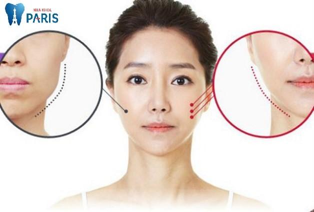 xương hàm dưới tai được cắt ngắn để tạo khuôn mặt nhỏ hơn theo tỷ lệ vàng