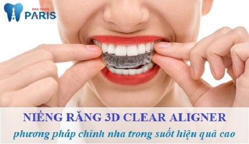 niềng răng 3d clear bao nhiêu tiền