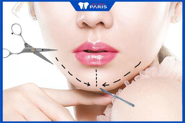 Phẫu thuật gọt cằm Vline gồm các bước