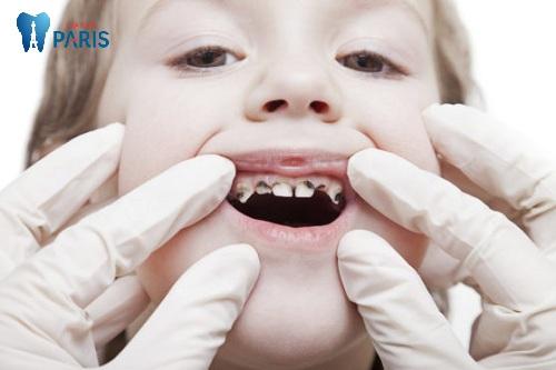 hàm răng sún ở trẻ em