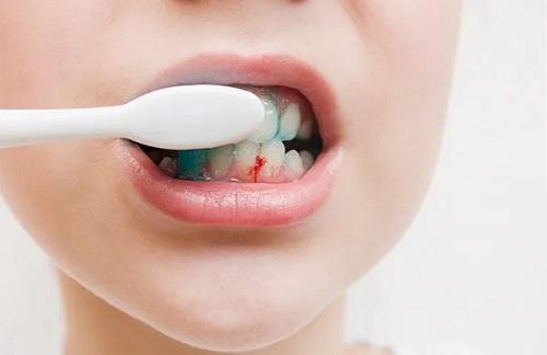 hay bị chảy máu chân răng khi đánh răng