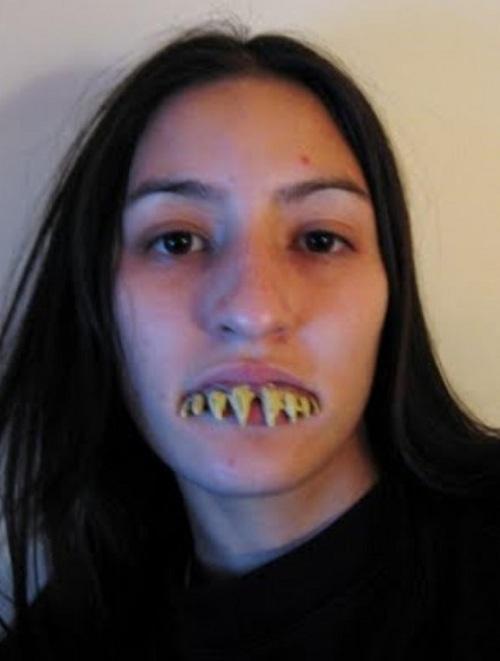 Hình ảnh hàm răng xấu xí