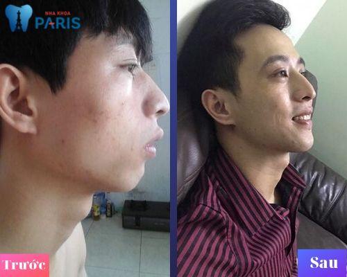 hình ảnh trước và sau khi niềng răng hô