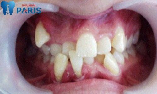 Hình ảnh răng bị lòi xỉ