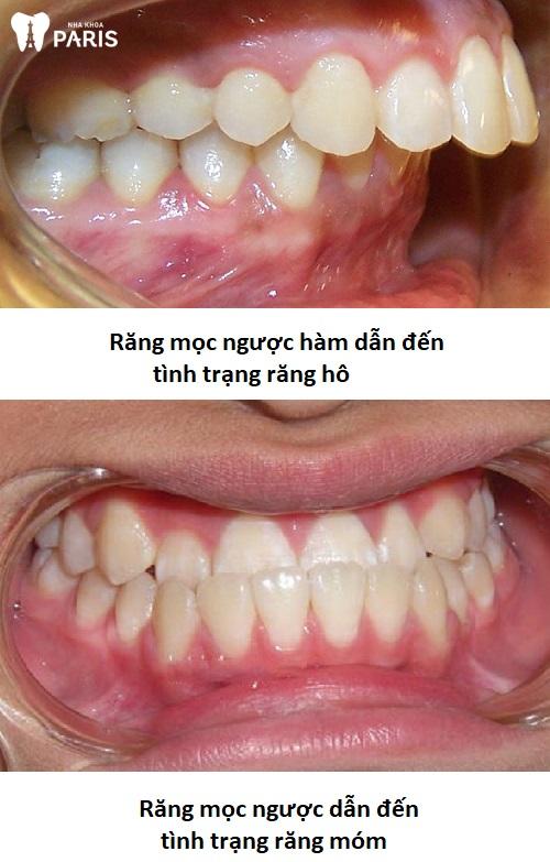 Hình ảnh răng mọc ngược vào trong