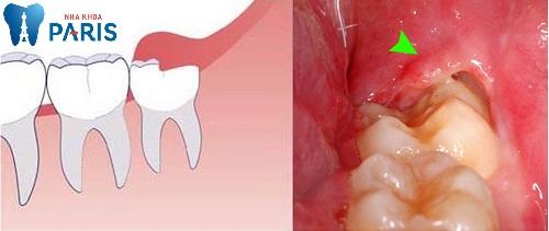 Hình ảnh viêm lợi trùm răng số 8