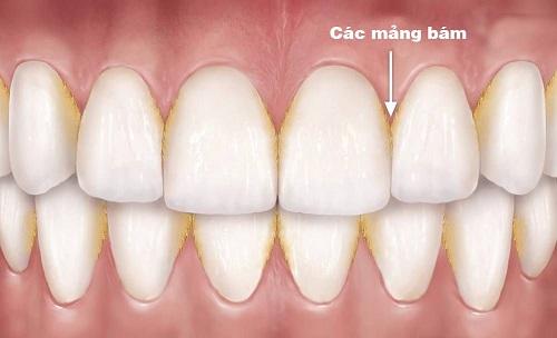 hình ảnh viêm nha chu răng