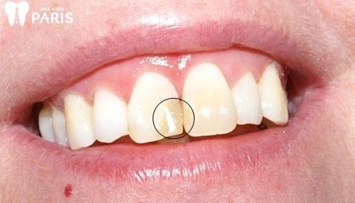 hình ảnh viêm tủy răng cửa