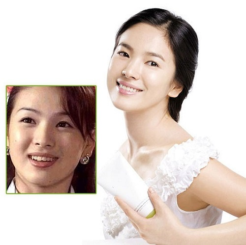 idol kpop niềng răng