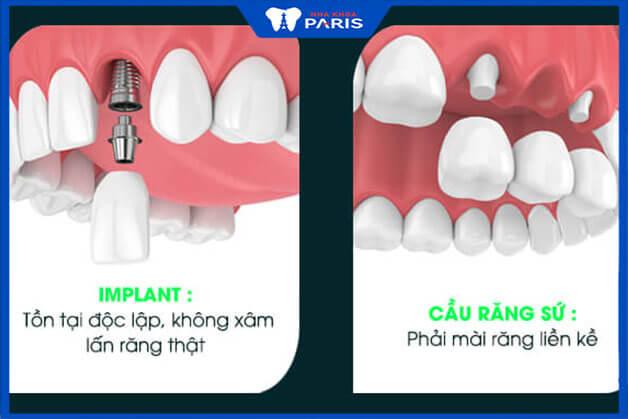 Khái niệm về cầu răng sứ và Implant