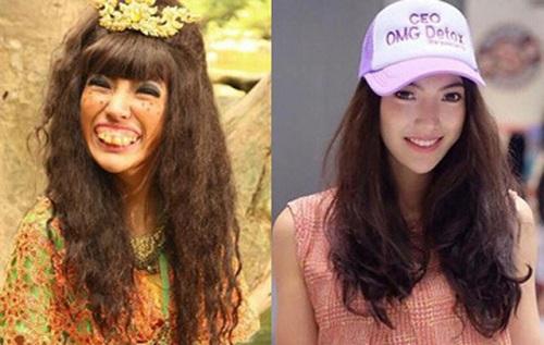 khuôn mặt trước và sau khi niềng răng hô