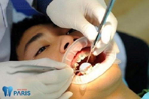 kích thước dây cung niềng răng