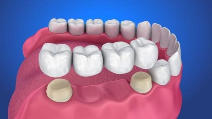 cầu răng sứ hàm dưới