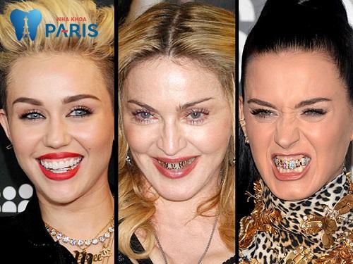 Làm răng thẩm mỹ đính kim cương thể hiện sự sành điệu – đẳng cấp