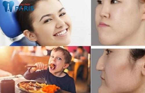 lệch hàm nhai