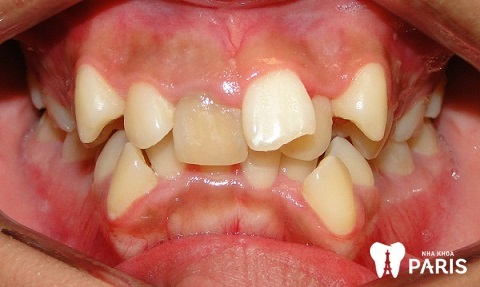 Răng trẻ dễ mọc lệch nếu cha mẹ không chú ý trong lịch thay răng vĩnh viễn ở trẻ