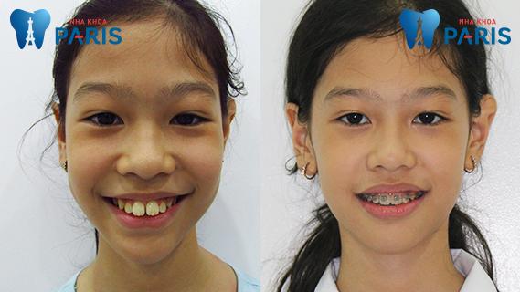 Niềng răng là giải pháp tốt nhất khi răng vĩnh viễn của trẻ mọc lệch