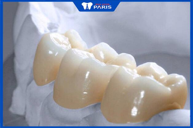 Lý do răng toàn sứ trở thành xu hướng thẩm mỹ răng