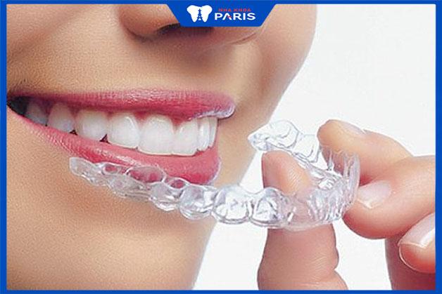 Máng răng là gì