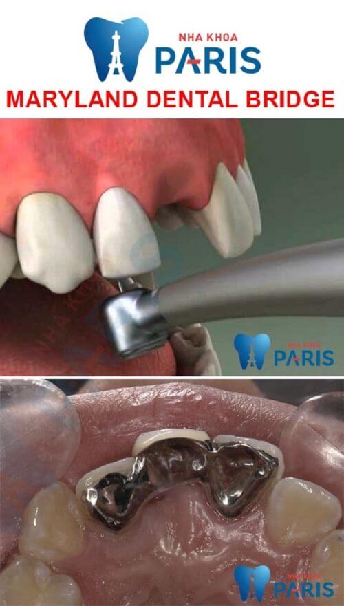cầu răng nha khoa maryland