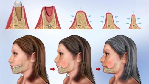 mất răng hàm lâu năm
