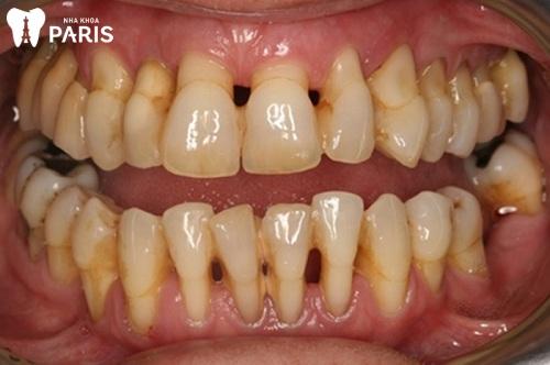 Mòn răng mặt nhai