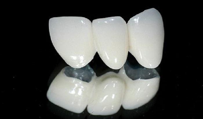 Răng sứ kim loại tuy tính thẩm mỹ